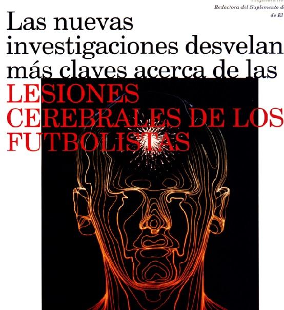 Lesiones cerebrales de los futbolistas